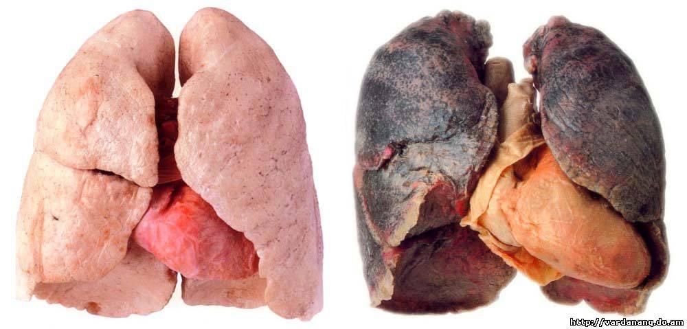 Слева - лёгкие здорового человека без вредных привычек, справа - то